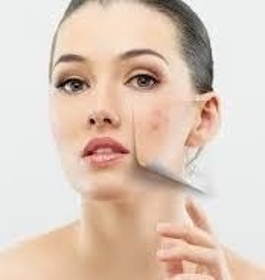 Picture of Keratopeel